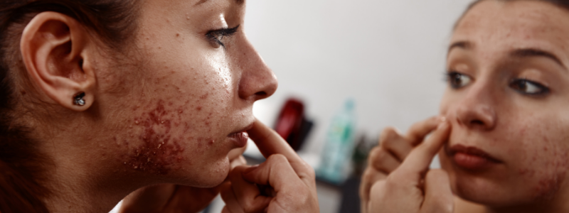 Common Skin Problems For Drug Abusers And Alcoholics